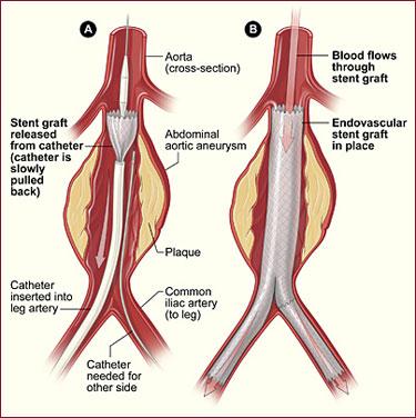 Abdominal Aortic Aneurysm Endovascular Repair (Stent Graft ...