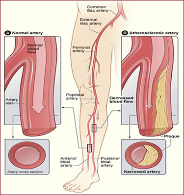 Peripheral Laser Atherectomy - Peripheral Vascular - Services ...