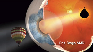 Telescopic Surgery for Macular Degeneration